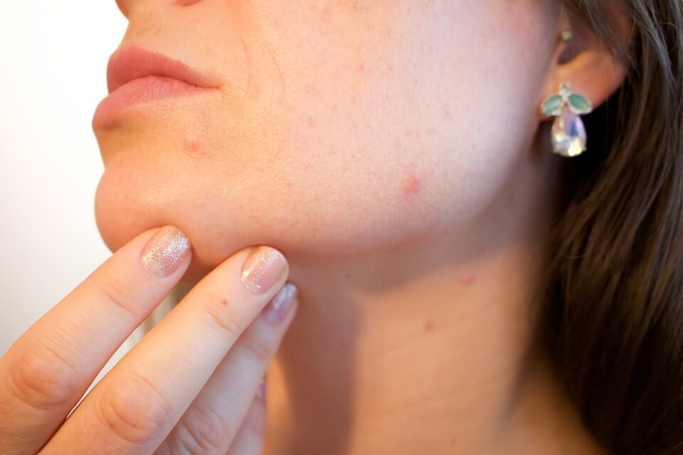 ketogenic diet for acne